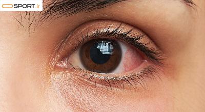 چگونه از سوزش چشم بعد از شنا جلوگیری کنیم؟